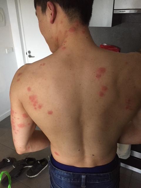 Bedbug Bites Melbourne